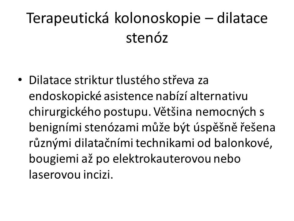 Terapeutická kolonoskopie – dilatace stenóz