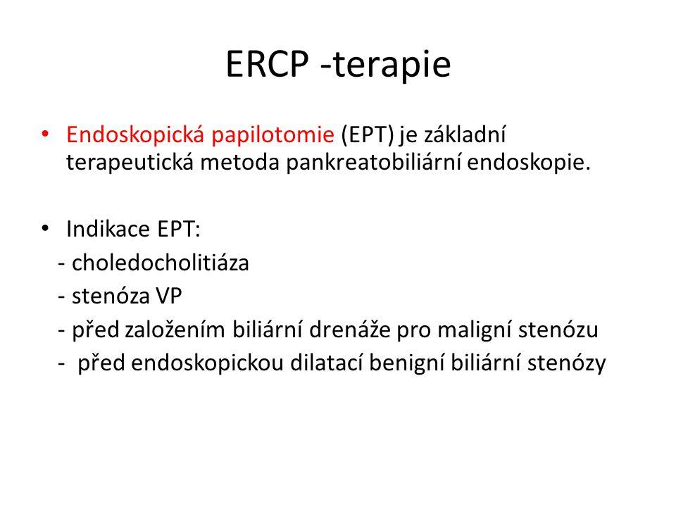 ERCP -terapie Endoskopická papilotomie (EPT) je základní terapeutická metoda pankreatobiliární endoskopie.