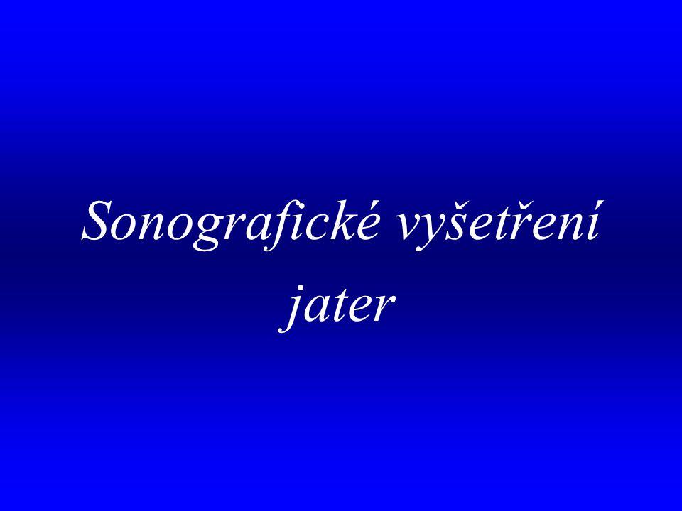 Sonografické vyšetření jater