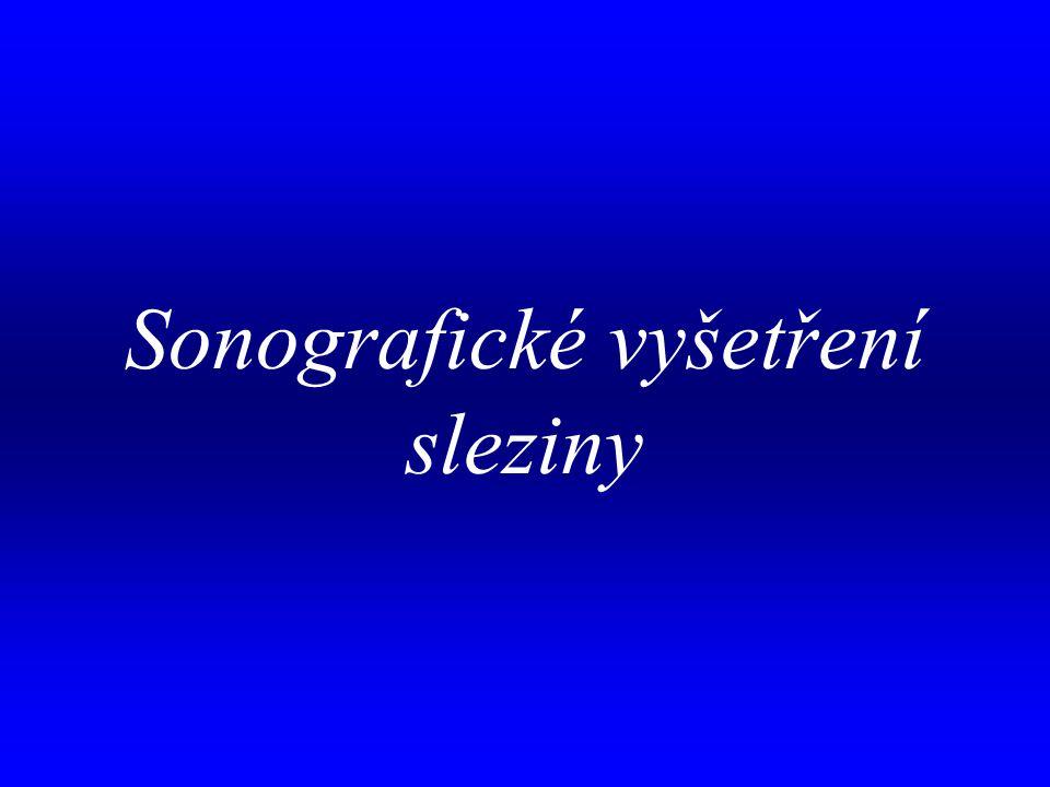 Sonografické vyšetření sleziny