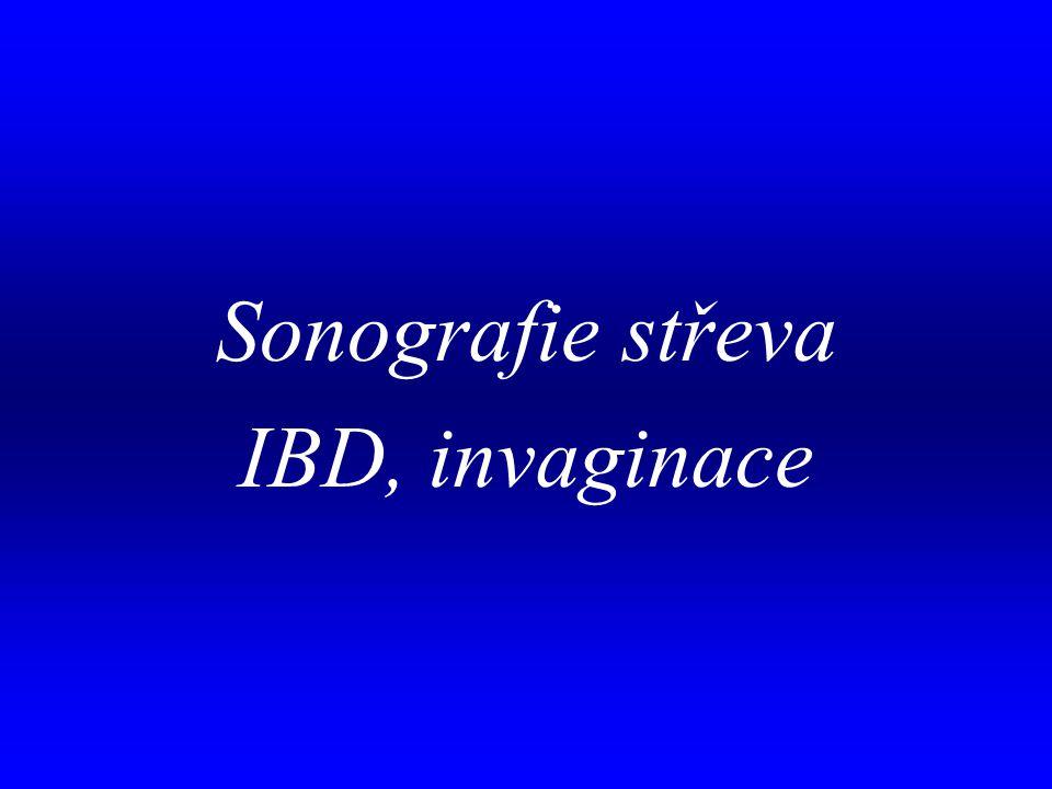 Sonografie střeva IBD, invaginace