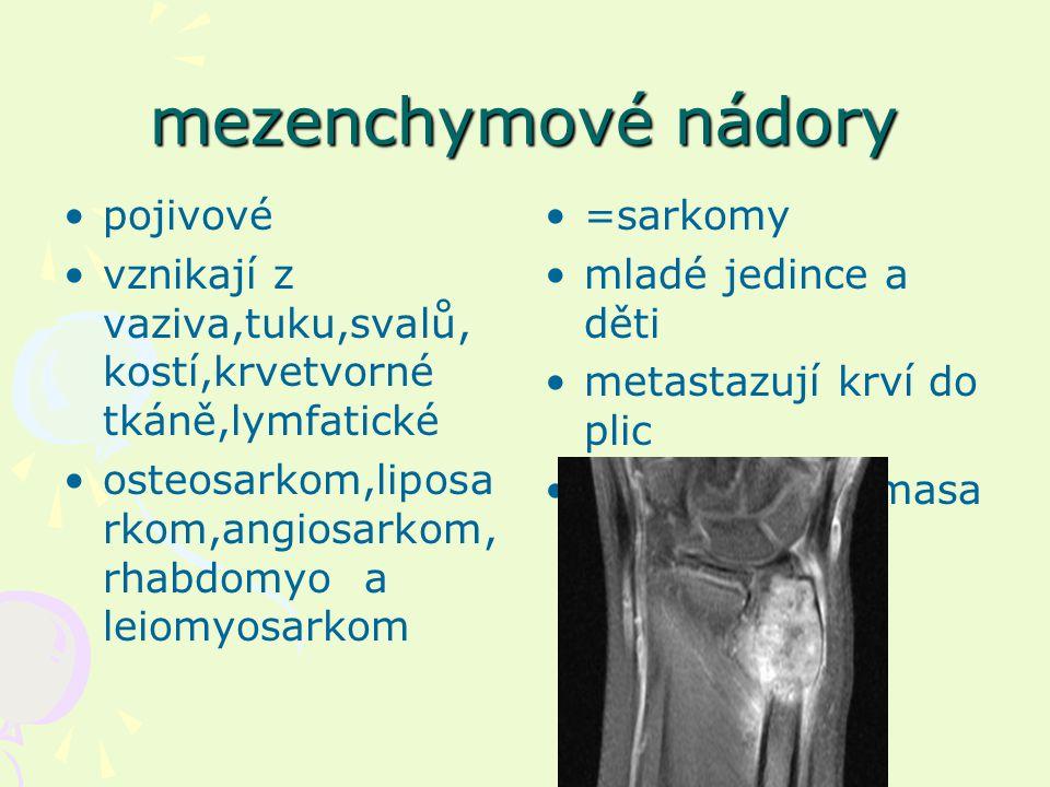 mezenchymové nádory pojivové