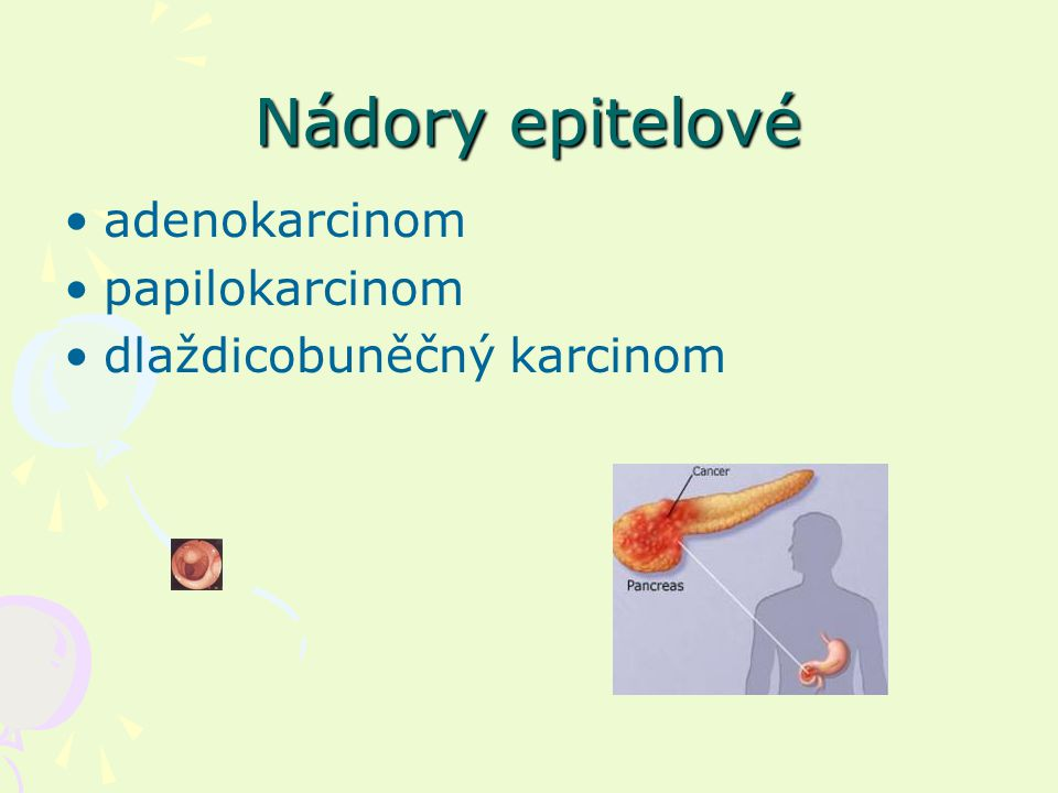 Nádory epitelové adenokarcinom papilokarcinom dlaždicobuněčný karcinom