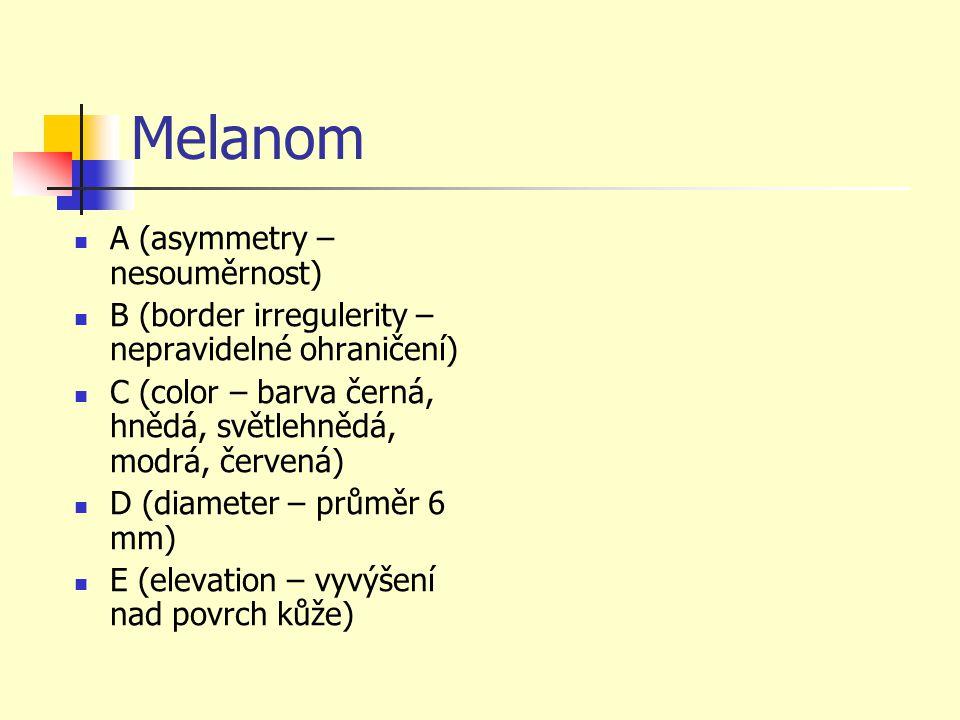 Melanom A (asymmetry – nesouměrnost)