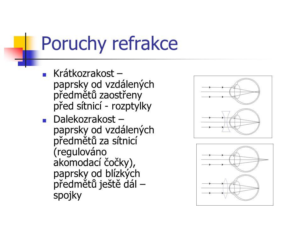 Poruchy refrakce Krátkozrakost – paprsky od vzdálených předmětů zaostřeny před sítnicí - rozptylky.