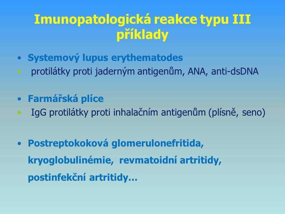 Imunopatologická reakce typu III příklady