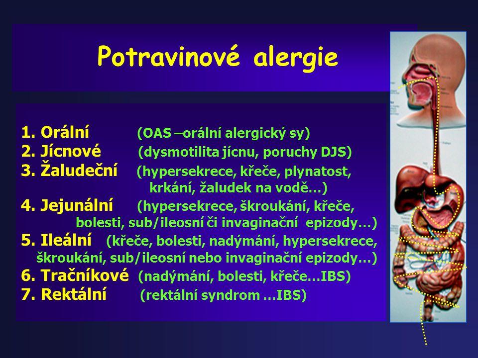 Potravinové alergie 1. Orální (OAS –orální alergický sy)