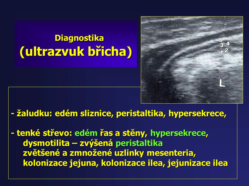Diagnostika (ultrazvuk břicha)