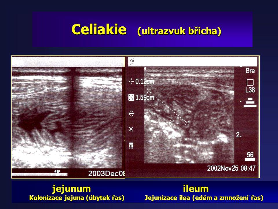 Celiakie (ultrazvuk břicha)
