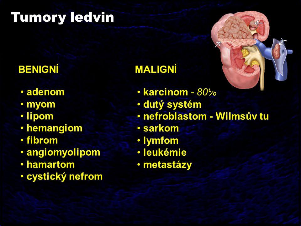 Tumory ledvin BENIGNÍ MALIGNÍ adenom myom lipom hemangiom fibrom