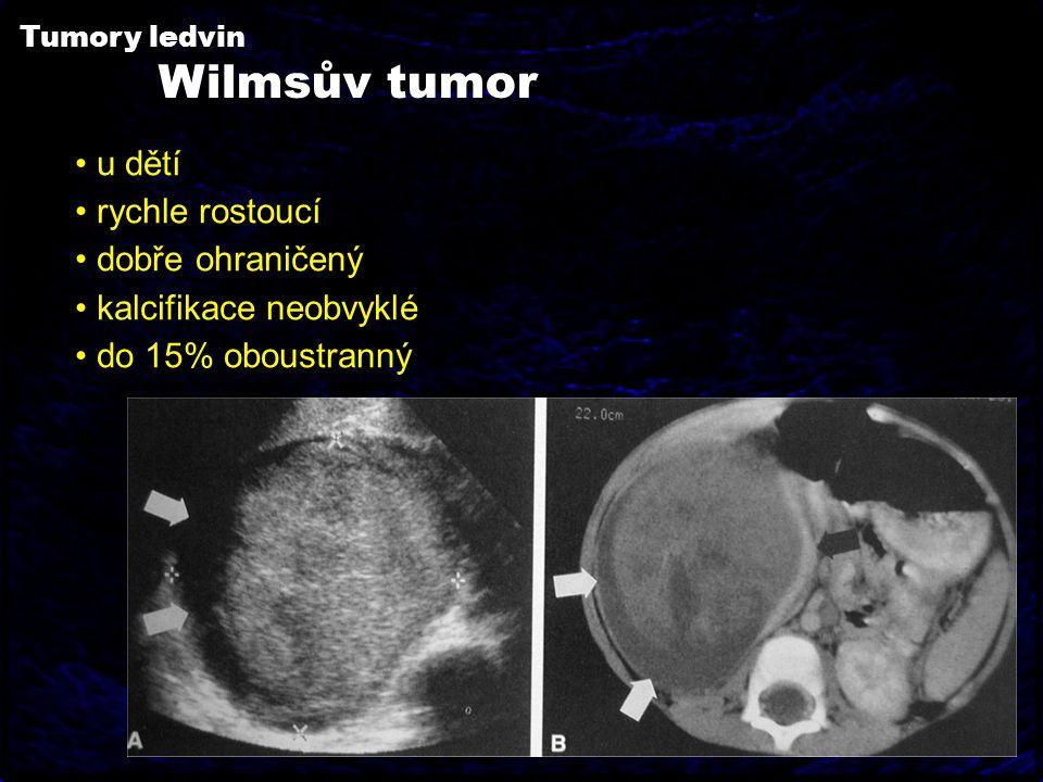 Wilmsův tumor u dětí rychle rostoucí dobře ohraničený