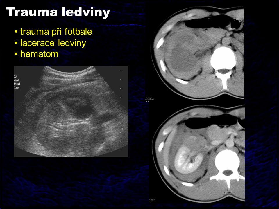 Trauma ledviny trauma při fotbale lacerace ledviny hematom