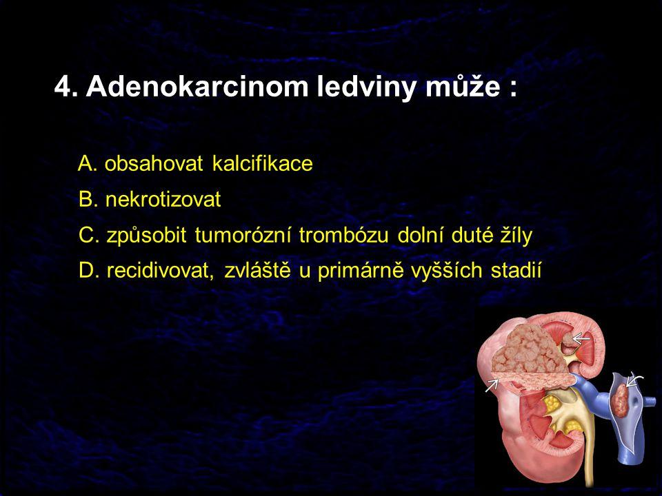 4. Adenokarcinom ledviny může :