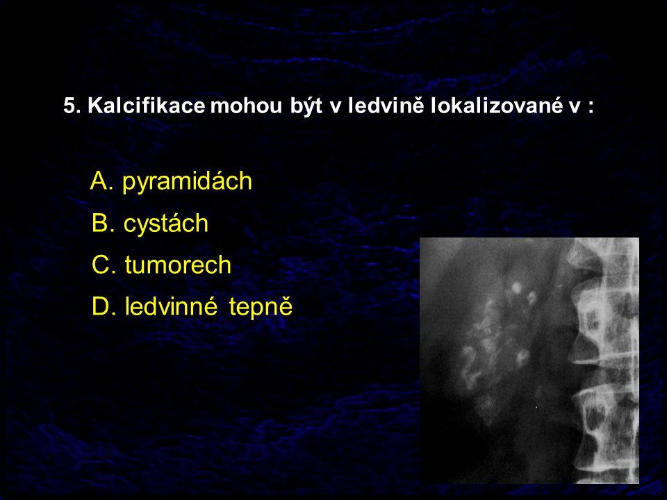 5. Kalcifikace mohou být v ledvině lokalizované v : A. pyramidách B