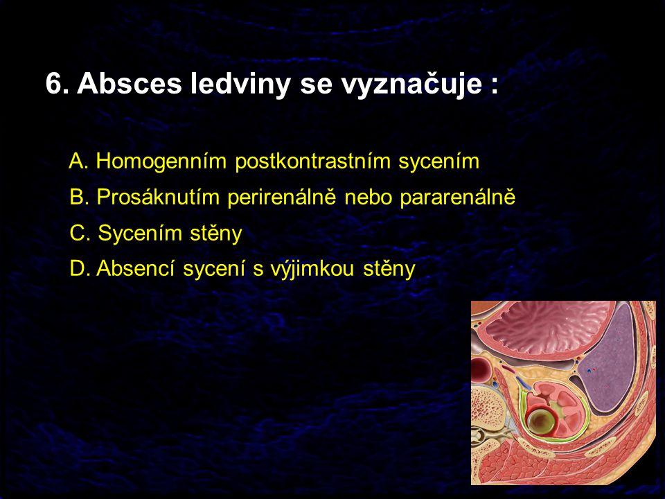 6. Absces ledviny se vyznačuje :