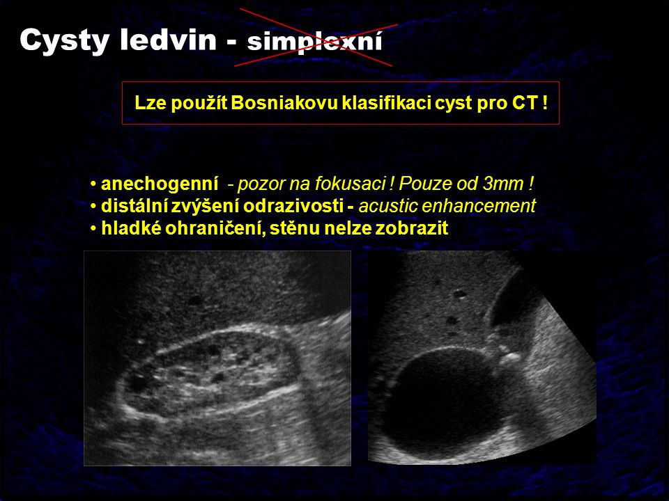 Cysty ledvin - simplexní