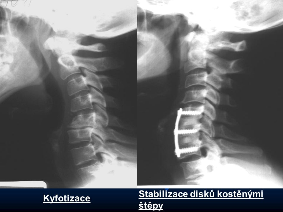Stabilizace disků kostěnými štěpy