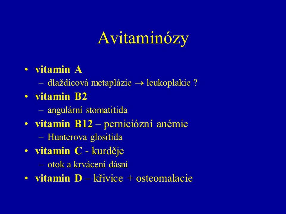 Avitaminózy vitamin A vitamin B2 vitamin B12 – perniciózní anémie