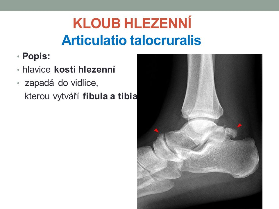 KLOUB HLEZENNÍ Articulatio talocruralis