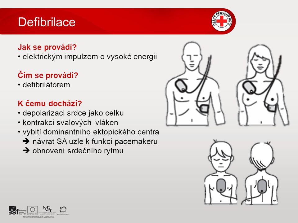 Defibrilace Jak se provádí elektrickým impulzem o vysoké energii