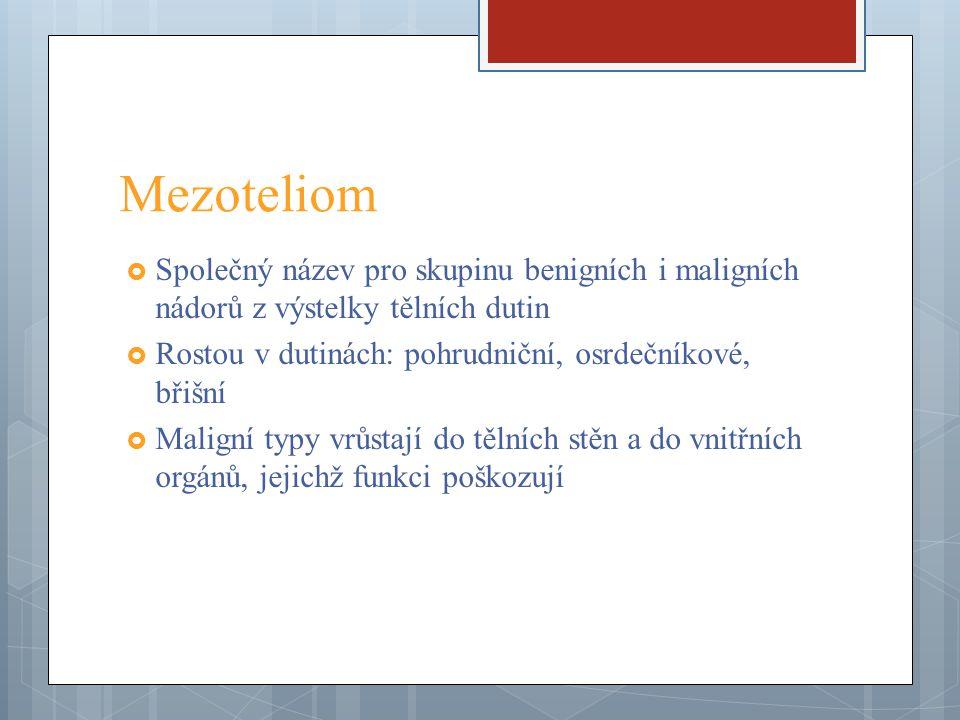 Mezoteliom Společný název pro skupinu benigních i maligních nádorů z výstelky tělních dutin. Rostou v dutinách: pohrudniční, osrdečníkové, břišní.