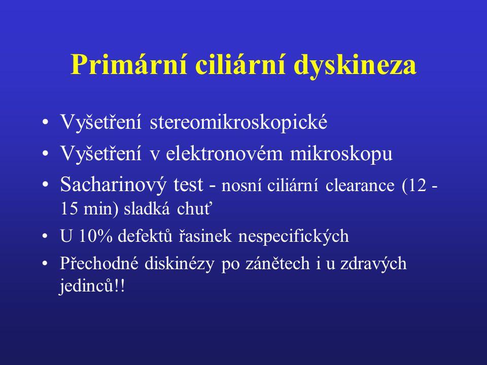 Primární ciliární dyskineza