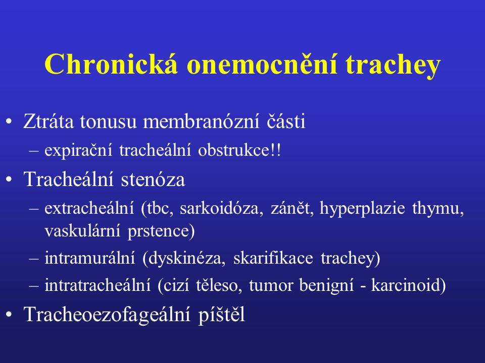 Chronická onemocnění trachey