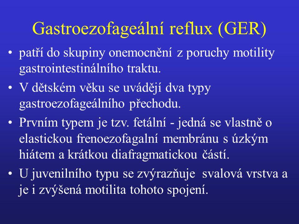 Gastroezofageální reflux (GER)