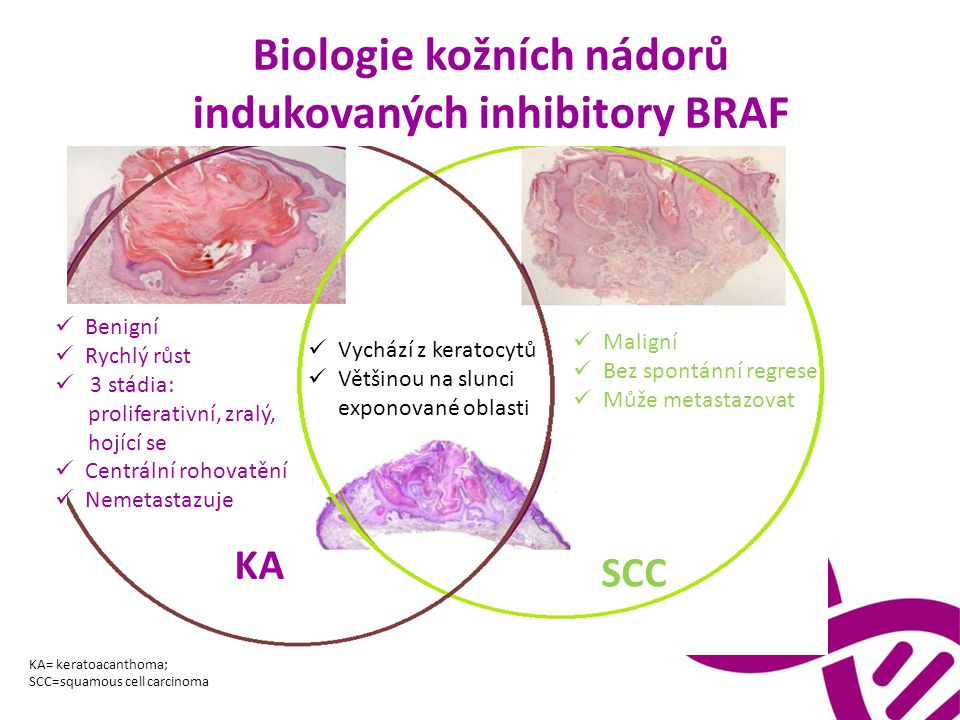 Biologie kožních nádorů indukovaných inhibitory BRAF