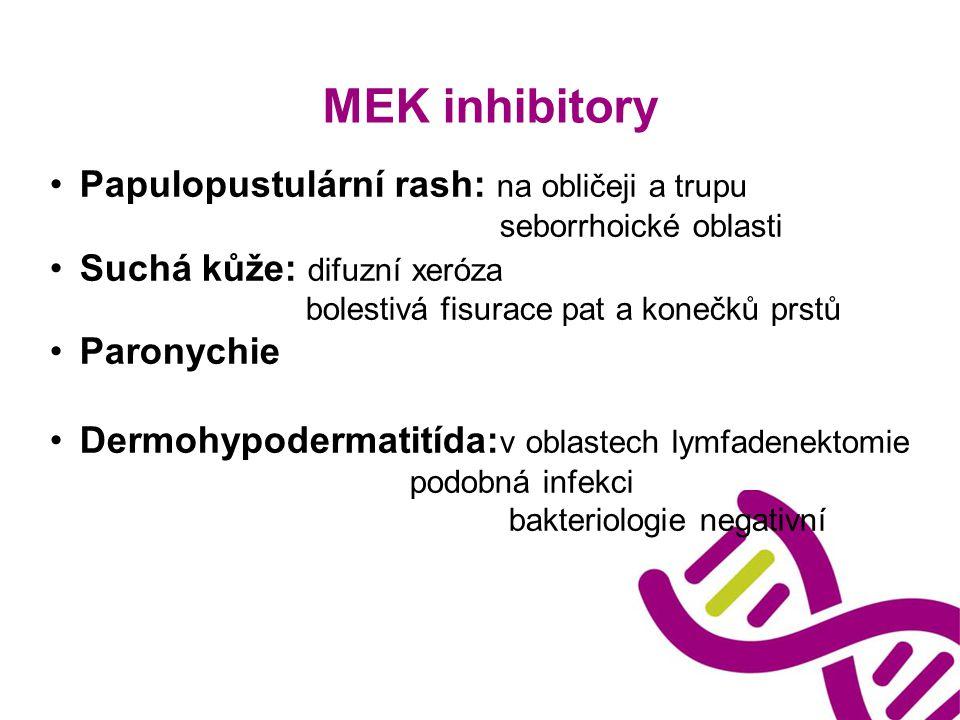MEK inhibitory Papulopustulární rash: na obličeji a trupu