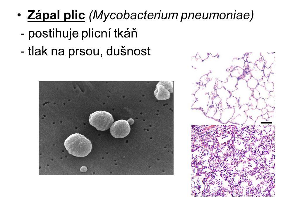 Zápal plic (Mycobacterium pneumoniae)
