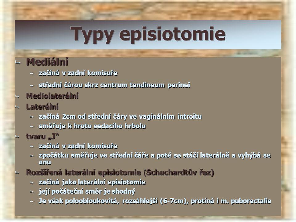"""Typy episiotomie Mediální Mediolaterální Laterální tvaru """"J"""