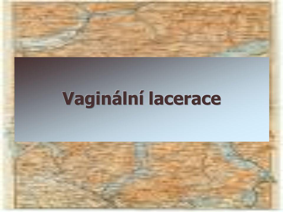 Vaginální lacerace