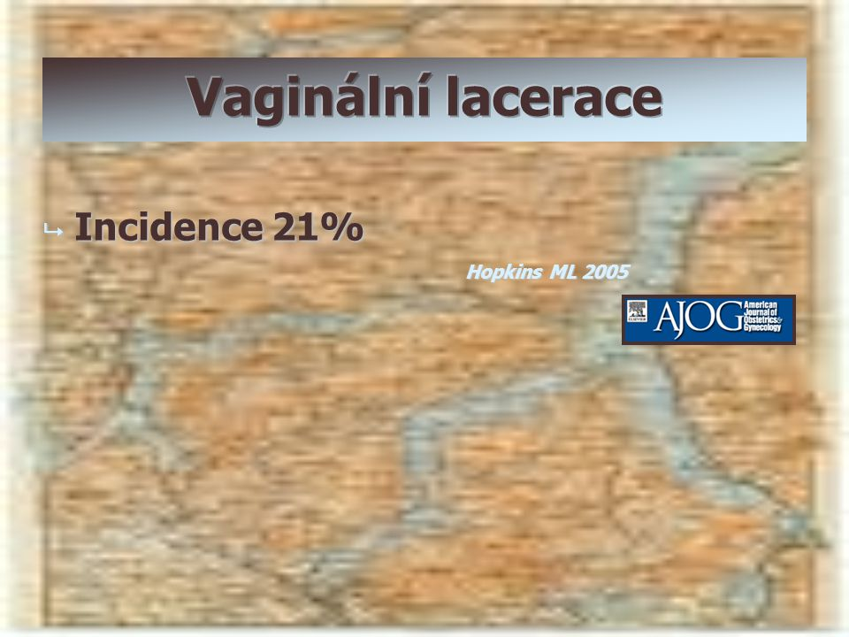 Vaginální lacerace Incidence 21% Hopkins ML 2005
