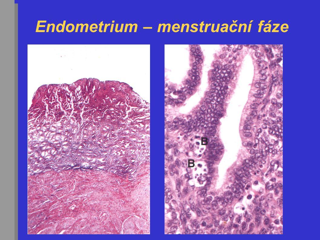 Endometrium – menstruační fáze