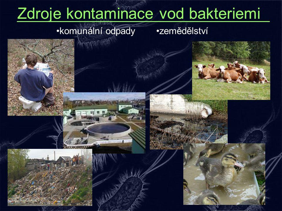 Zdroje kontaminace vod bakteriemi