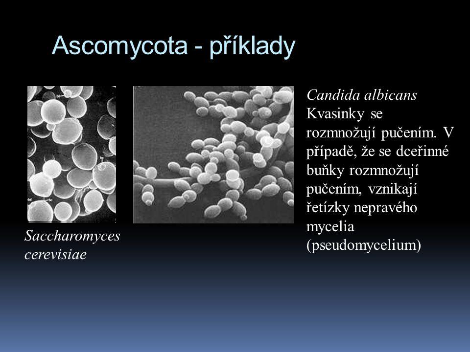 Ascomycota - příklady Candida albicans