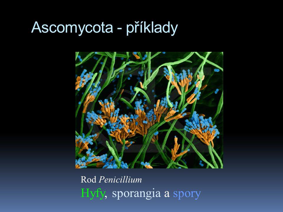Ascomycota - příklady Rod Penicillium Hyfy, sporangia a spory