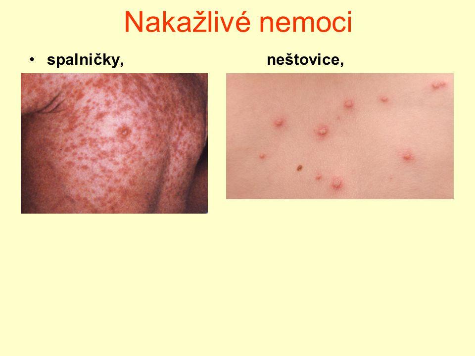 Nakažlivé nemoci spalničky, neštovice,