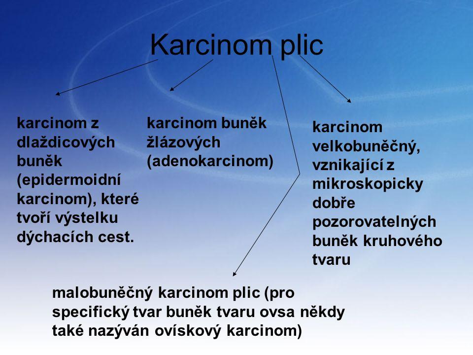 Karcinom plic karcinom z dlaždicových buněk (epidermoidní karcinom), které tvoří výstelku dýchacích cest.
