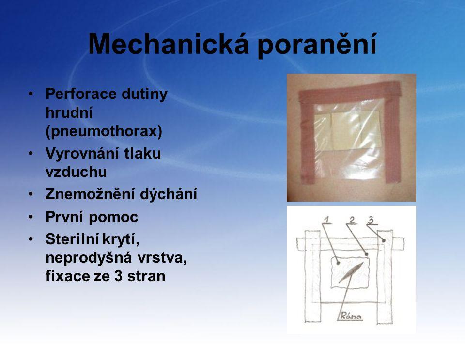 Mechanická poranění Perforace dutiny hrudní (pneumothorax)