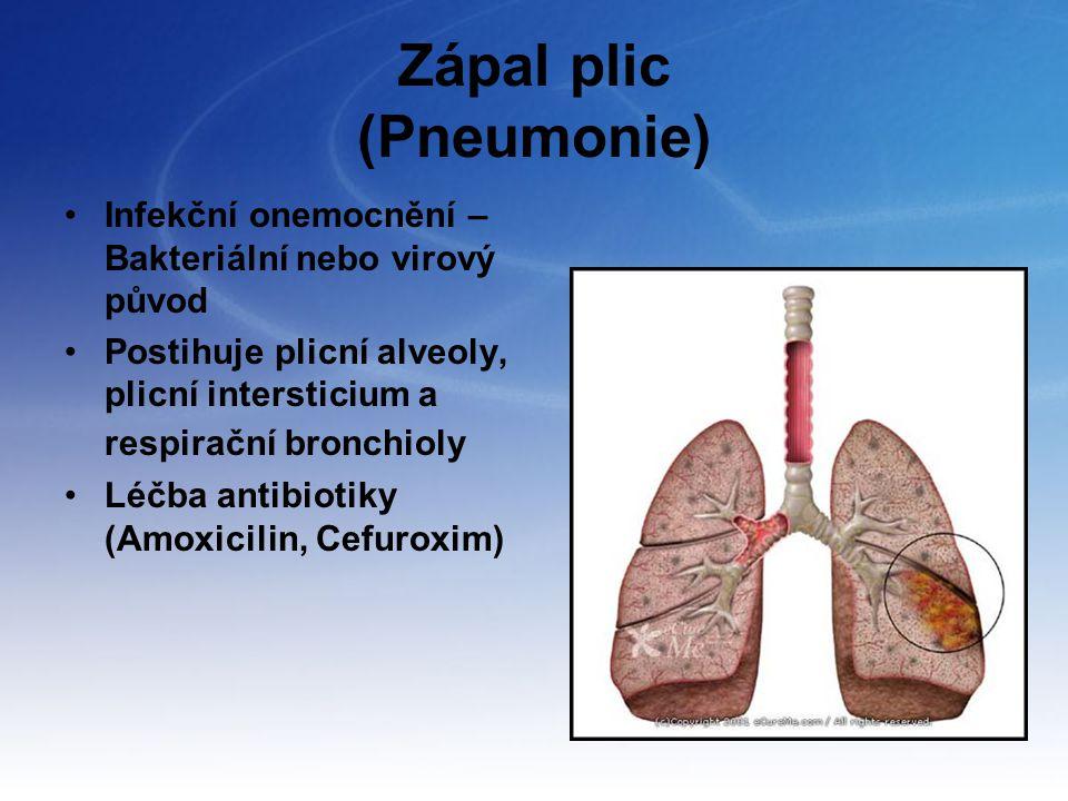 Zápal plic (Pneumonie)