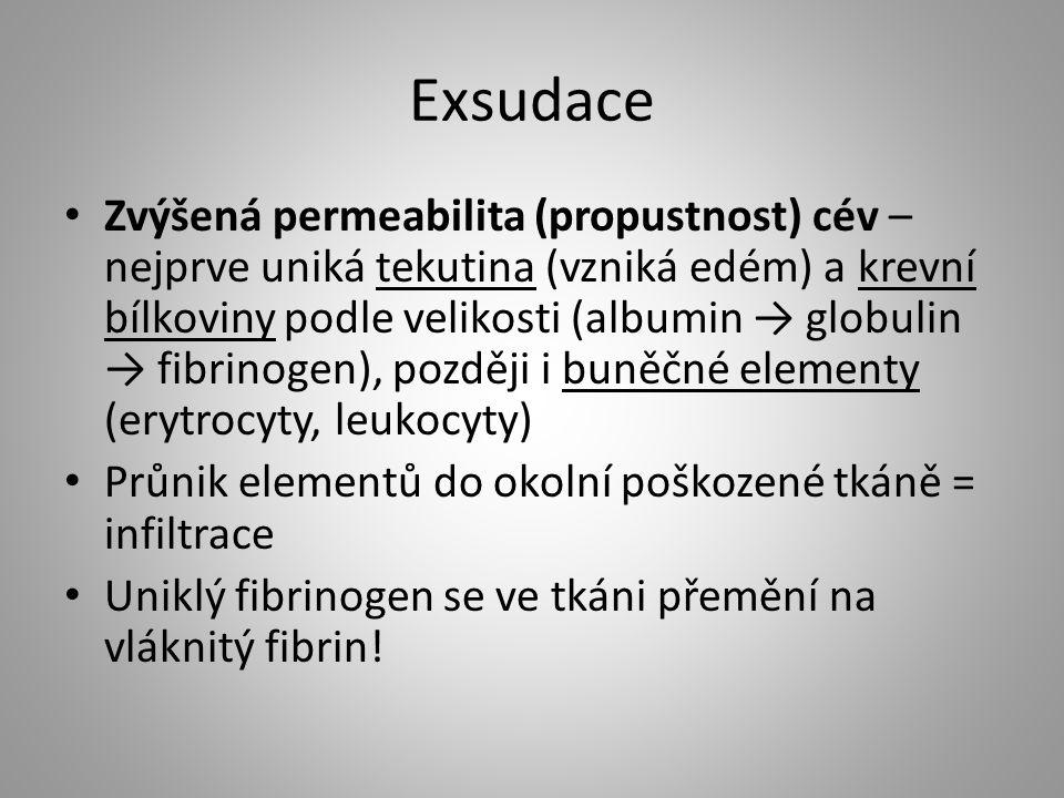 Exsudace
