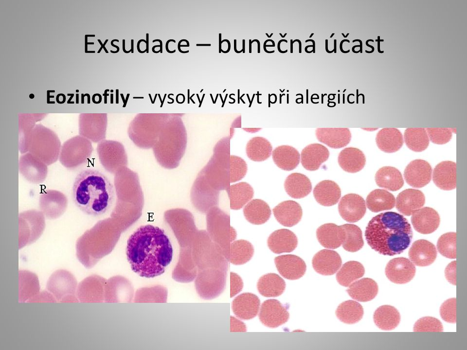 Exsudace – buněčná účast