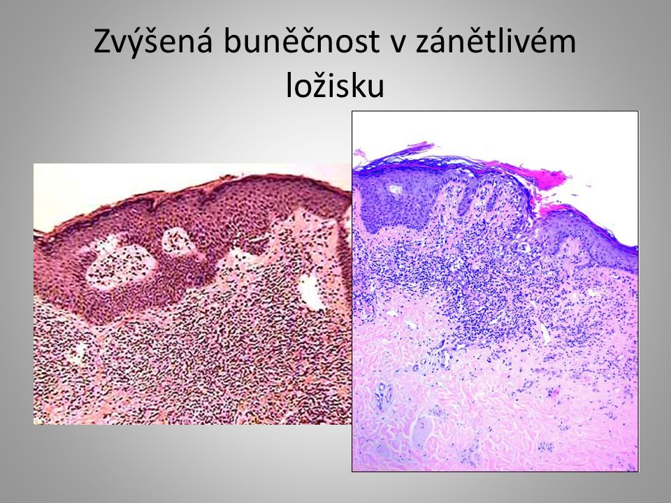 Zvýšená buněčnost v zánětlivém ložisku