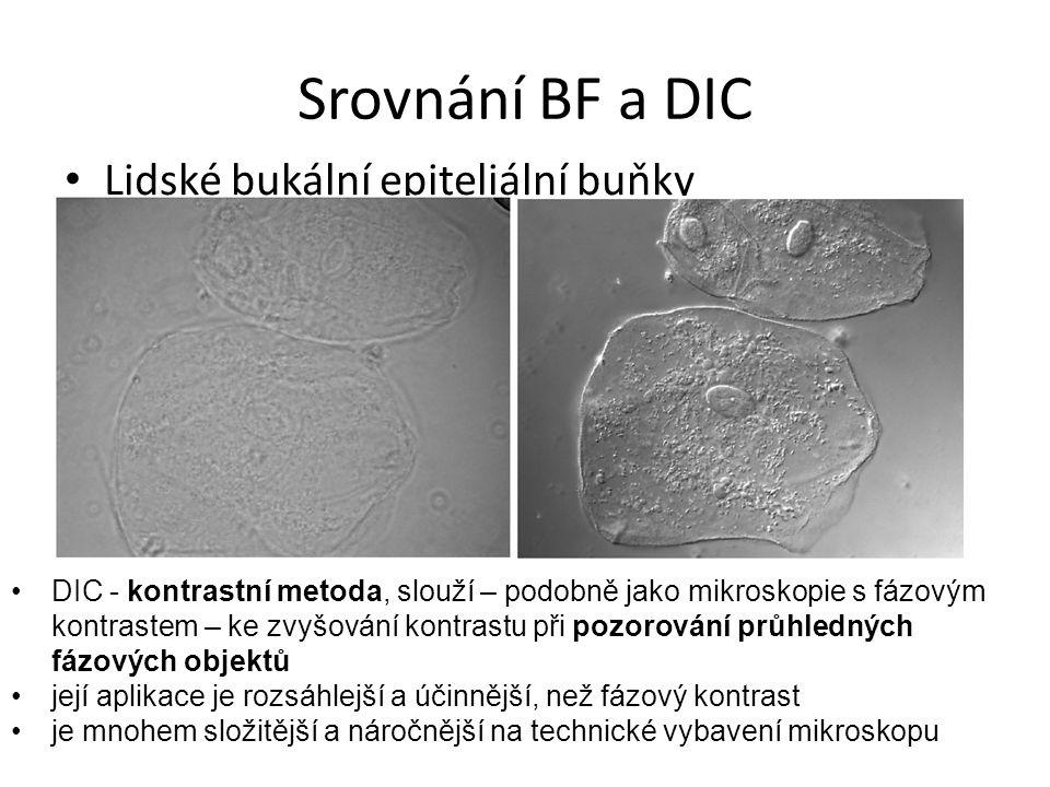 Srovnání BF a DIC Lidské bukální epiteliální buňky