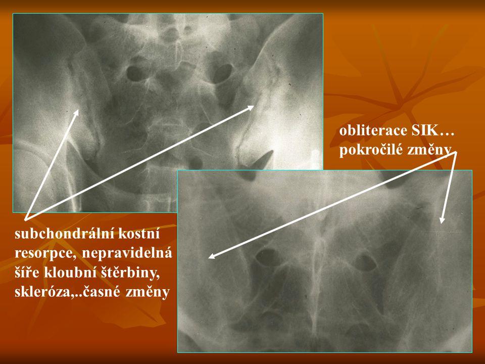 obliterace SIK… pokročilé změny. subchondrální kostní. resorpce, nepravidelná. šíře kloubní štěrbiny,
