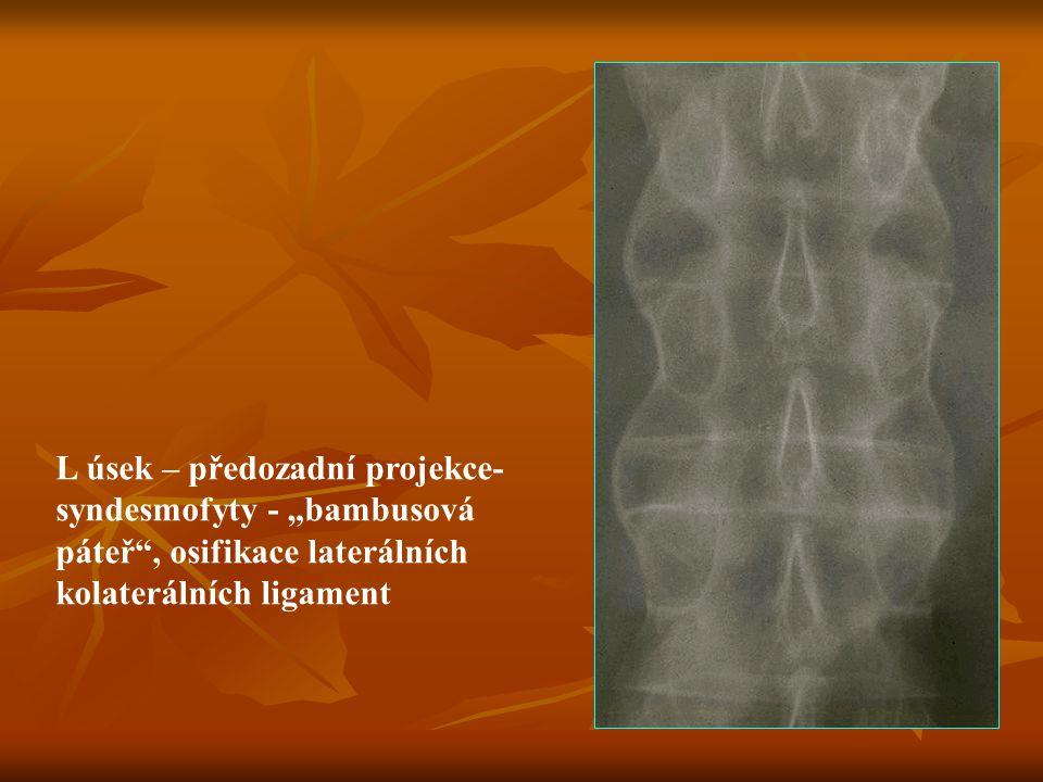 """L úsek – předozadní projekce- syndesmofyty - """"bambusová páteř , osifikace laterálních kolaterálních ligament"""