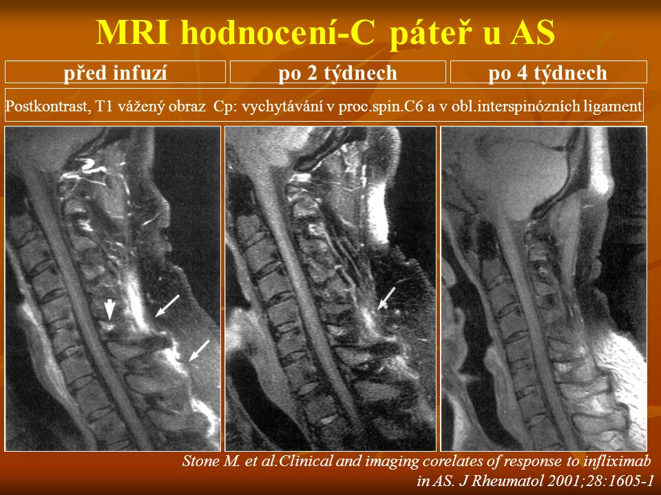 MRI hodnocení-C páteř u AS