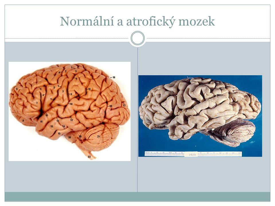 Normální a atrofický mozek